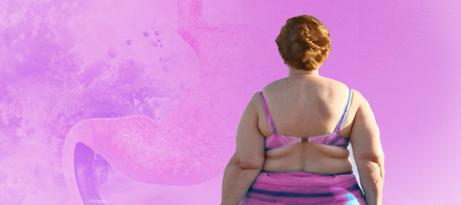 Obezite ve Meme Kanseri