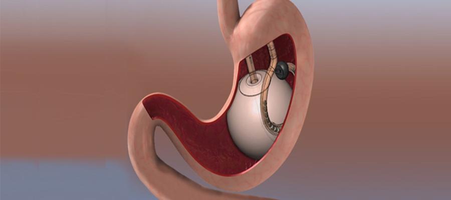 Ameliyatsız Obezite Tedavisi