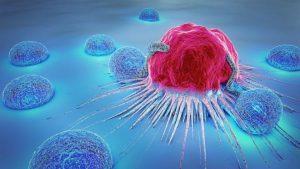 tüp mide ve kanser
